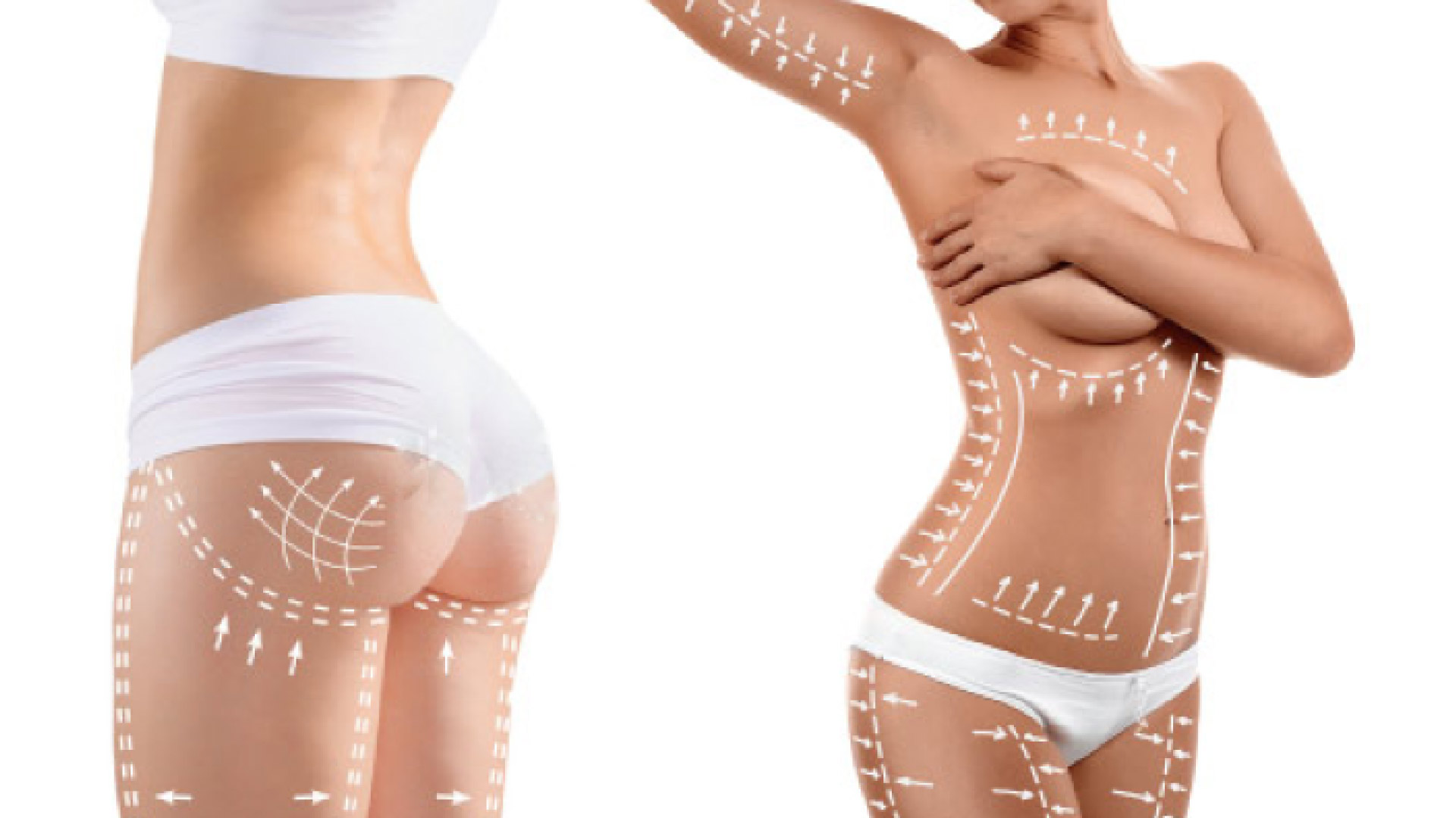 Liposuction 2 Plastic Surgery One